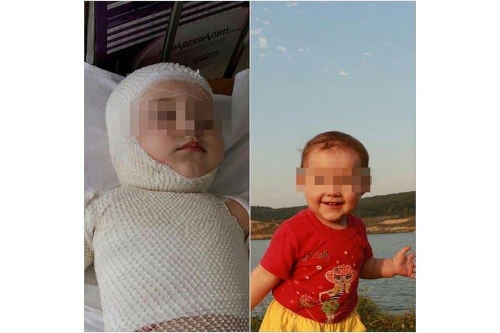 ВБашкирии годовалая малышка обварилась кипятком— девочке нужна помощь