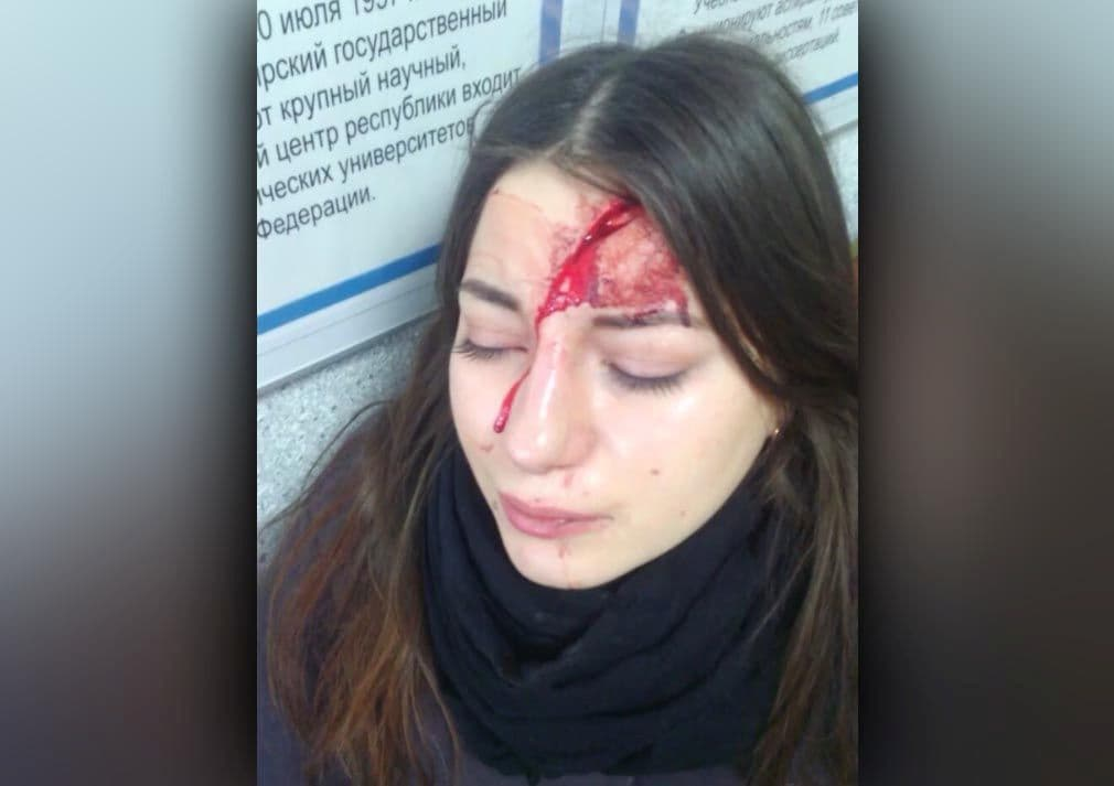 В Башкирии пенсионер, уронивший дверцу шкафа на студентку, выплатит 50 тысяч