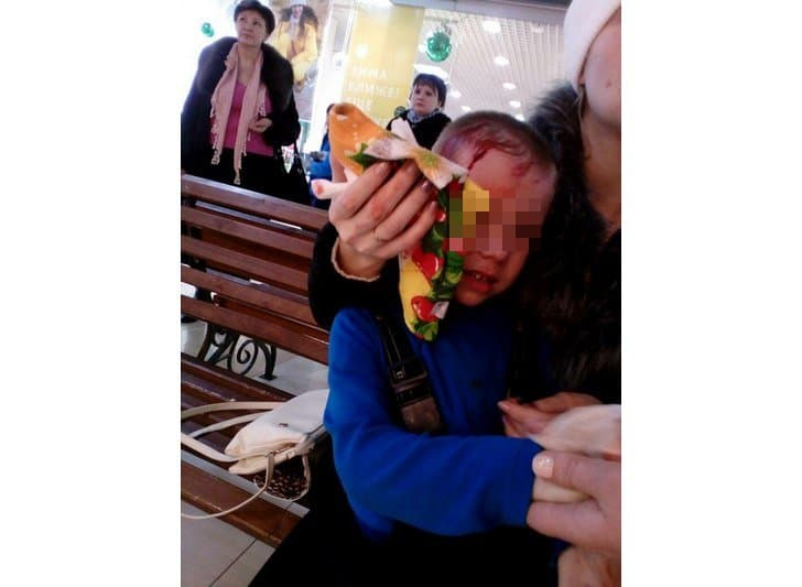 ВБашкирии в коммерческом центре ребенку наголову упало стекло