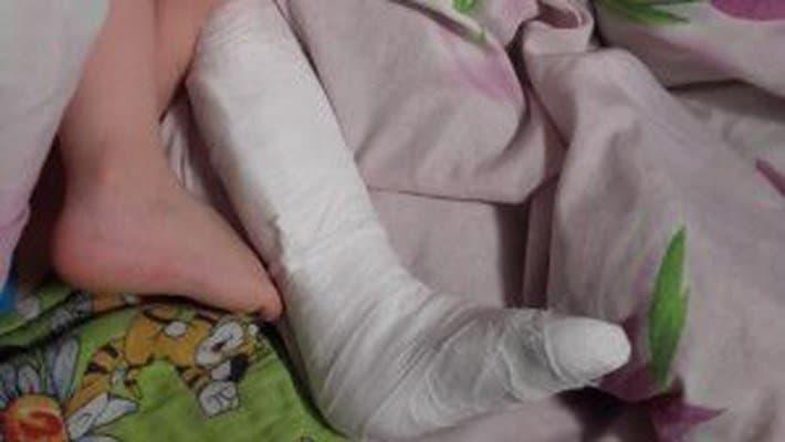 ВЧелнах 4-летнему ребенку зажало ногу вэскалаторе
